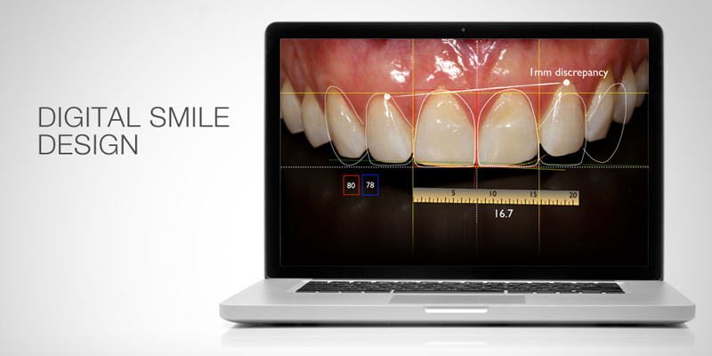Digital Smile Design used at PERFECT SMILE Dental Clinic