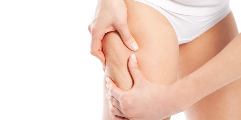 Cellulite Treatment at Clínica Privé